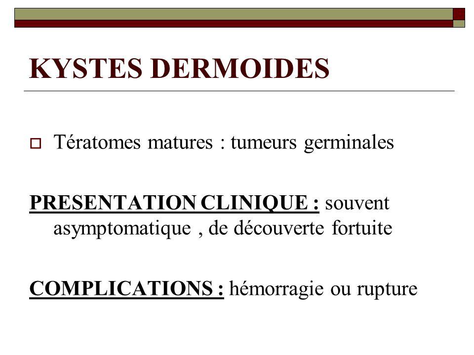 KYSTES DERMOIDES Tératomes matures : tumeurs germinales PRESENTATION CLINIQUE : souvent asymptomatique, de découverte fortuite COMPLICATIONS : hémorra