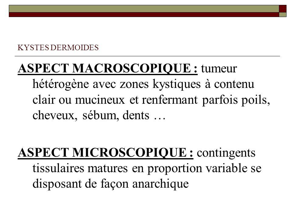 KYSTES DERMOIDES ASPECT MACROSCOPIQUE : tumeur hétérogène avec zones kystiques à contenu clair ou mucineux et renfermant parfois poils, cheveux, sébum