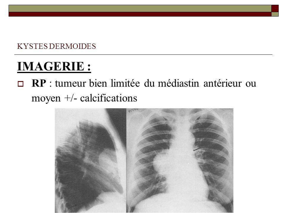 KYSTES DERMOIDES IMAGERIE : RP : tumeur bien limitée du médiastin antérieur ou moyen +/- calcifications