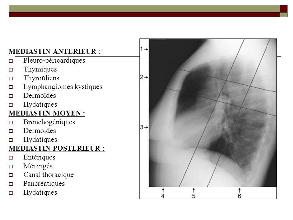 MEDIASTIN ANTERIEUR : Pleuro-péricardiques Thymiques Thyroïdiens Lymphangiomes kystiques Dermoïdes Hydatiques MEDIASTIN MOYEN : Bronchogéniques Dermoï