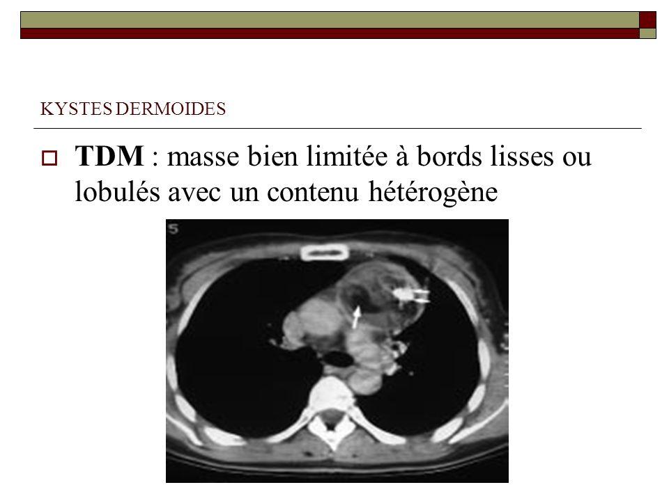 KYSTES DERMOIDES TDM : masse bien limitée à bords lisses ou lobulés avec un contenu hétérogène