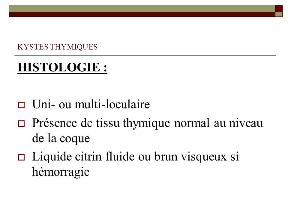 KYSTES THYMIQUES HISTOLOGIE : Uni- ou multi-loculaire Présence de tissu thymique normal au niveau de la coque Liquide citrin fluide ou brun visqueux s