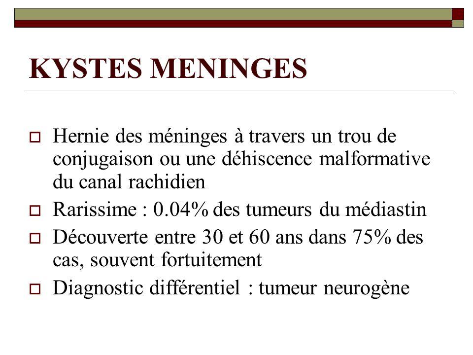KYSTES MENINGES Hernie des méninges à travers un trou de conjugaison ou une déhiscence malformative du canal rachidien Rarissime : 0.04% des tumeurs d