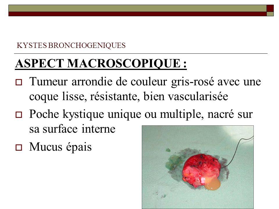 KYSTES BRONCHOGENIQUES ASPECT MACROSCOPIQUE : Tumeur arrondie de couleur gris-rosé avec une coque lisse, résistante, bien vascularisée Poche kystique