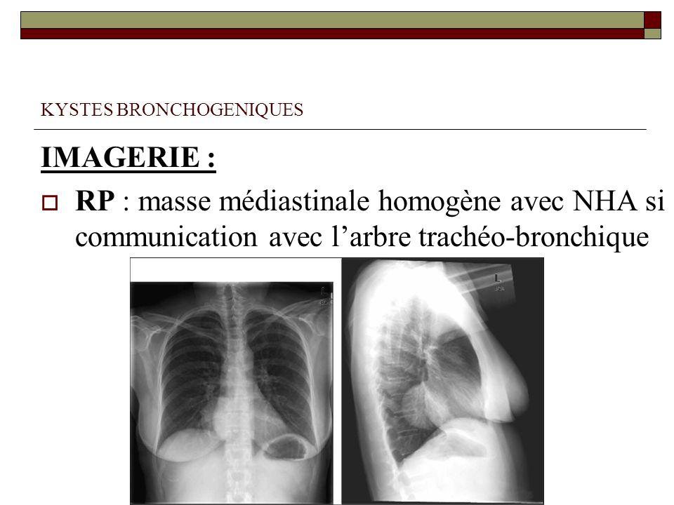 KYSTES BRONCHOGENIQUES IMAGERIE : RP : masse médiastinale homogène avec NHA si communication avec larbre trachéo-bronchique
