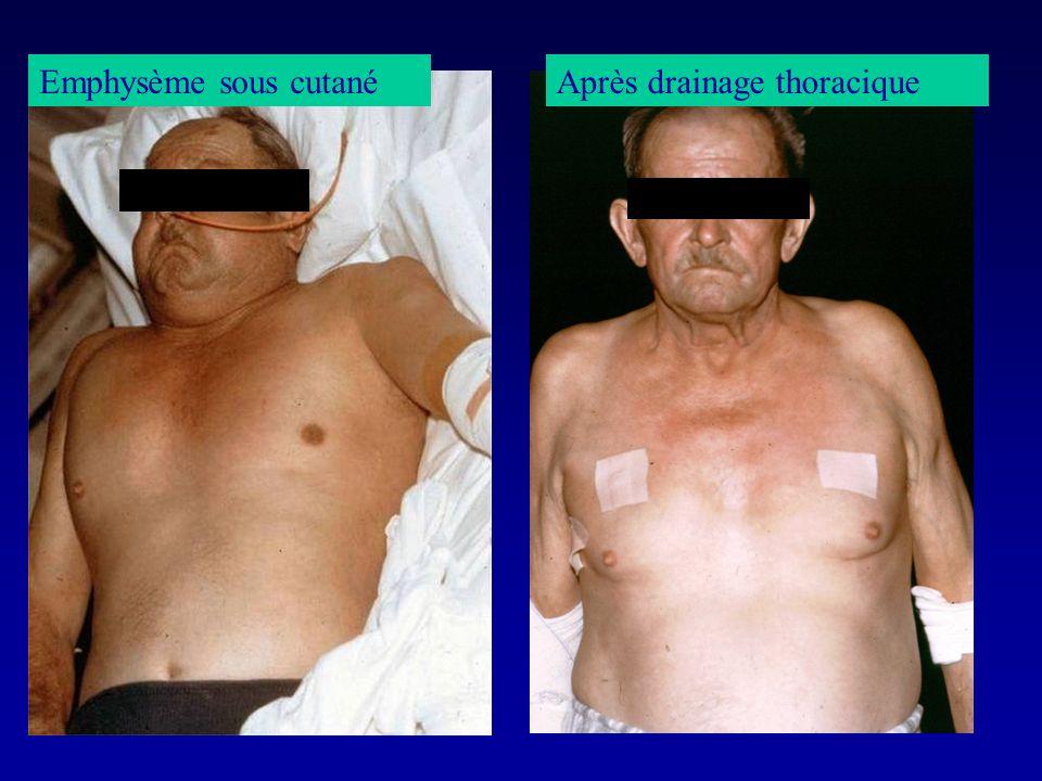 Emphysème sous cutanéAprès drainage thoracique