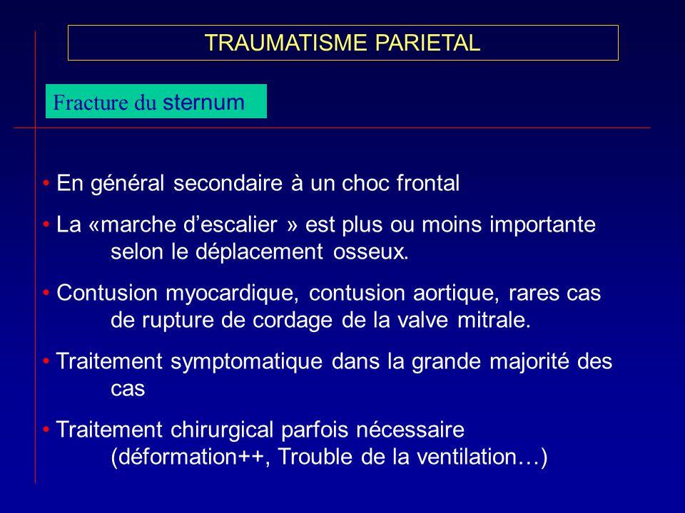 TRAUMATISME PARIETAL Fracture du sternum En général secondaire à un choc frontal La «marche descalier » est plus ou moins importante selon le déplacem