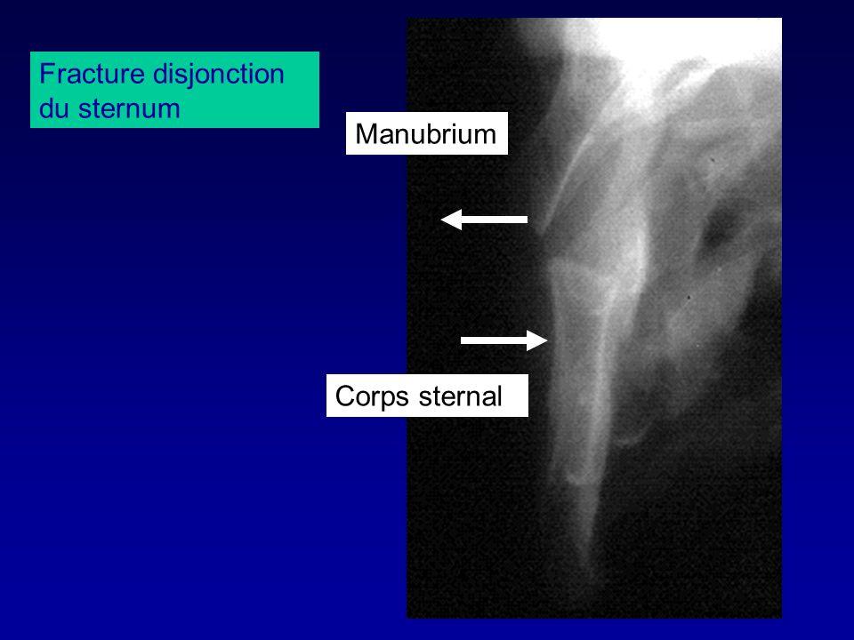 Manubrium Corps sternal Fracture disjonction du sternum