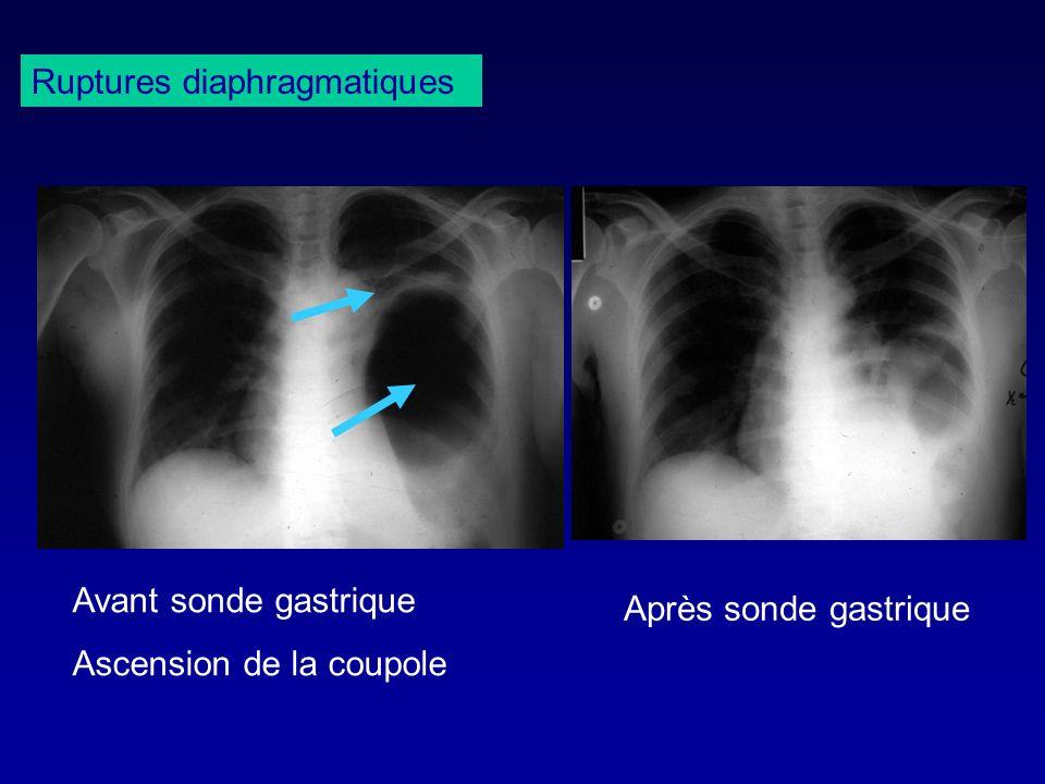 Ruptures diaphragmatiques Avant sonde gastrique Ascension de la coupole Après sonde gastrique