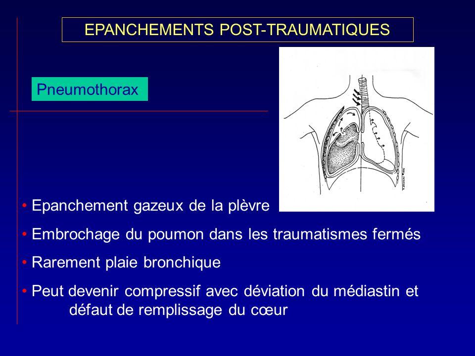 EPANCHEMENTS POST-TRAUMATIQUES Pneumothorax Epanchement gazeux de la plèvre Embrochage du poumon dans les traumatismes fermés Rarement plaie bronchiqu