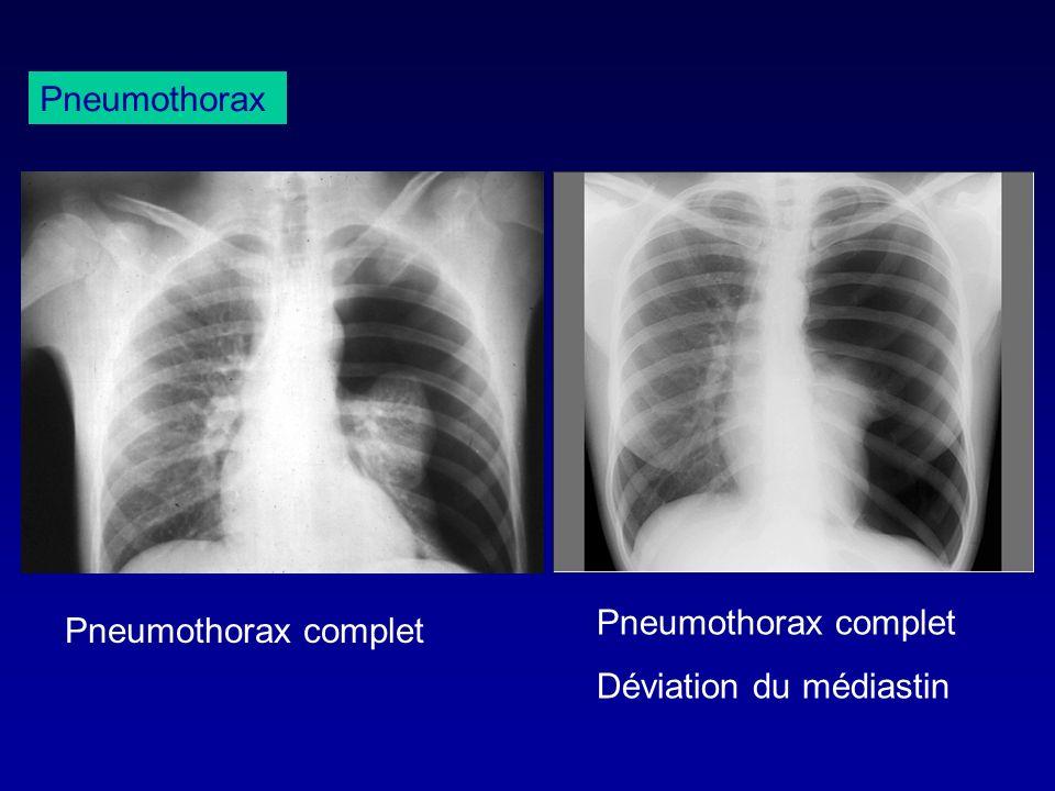 Pneumothorax Pneumothorax complet Déviation du médiastin