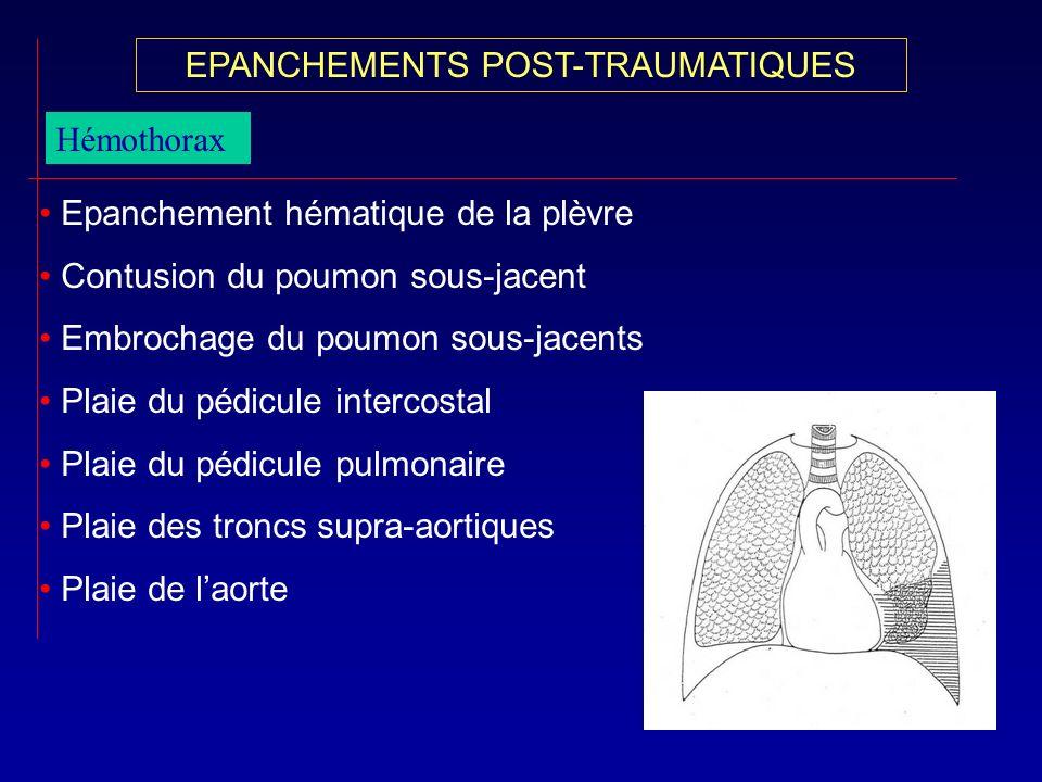 Hémothorax Epanchement hématique de la plèvre Contusion du poumon sous-jacent Embrochage du poumon sous-jacents Plaie du pédicule intercostal Plaie du