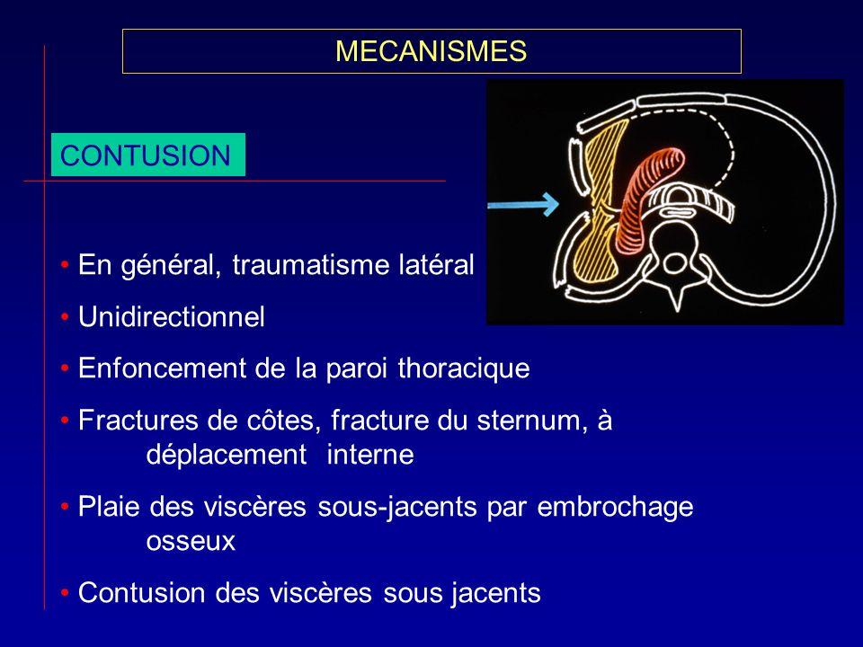MECANISMES CONTUSION En général, traumatisme latéral Unidirectionnel Enfoncement de la paroi thoracique Fractures de côtes, fracture du sternum, à dép