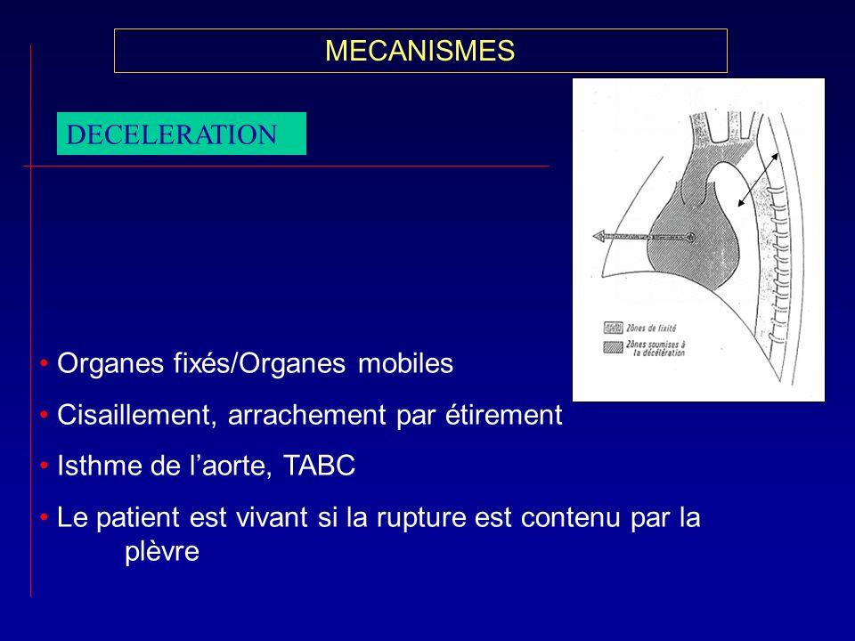 MECANISMES DECELERATION Organes fixés/Organes mobiles Cisaillement, arrachement par étirement Isthme de laorte, TABC Le patient est vivant si la ruptu