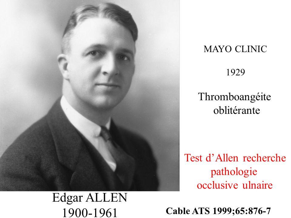 Edgar ALLEN 1900-1961 MAYO CLINIC 1929 Thromboangéite oblitérante Cable ATS 1999;65:876-7 Test dAllen recherche pathologie occlusive ulnaire