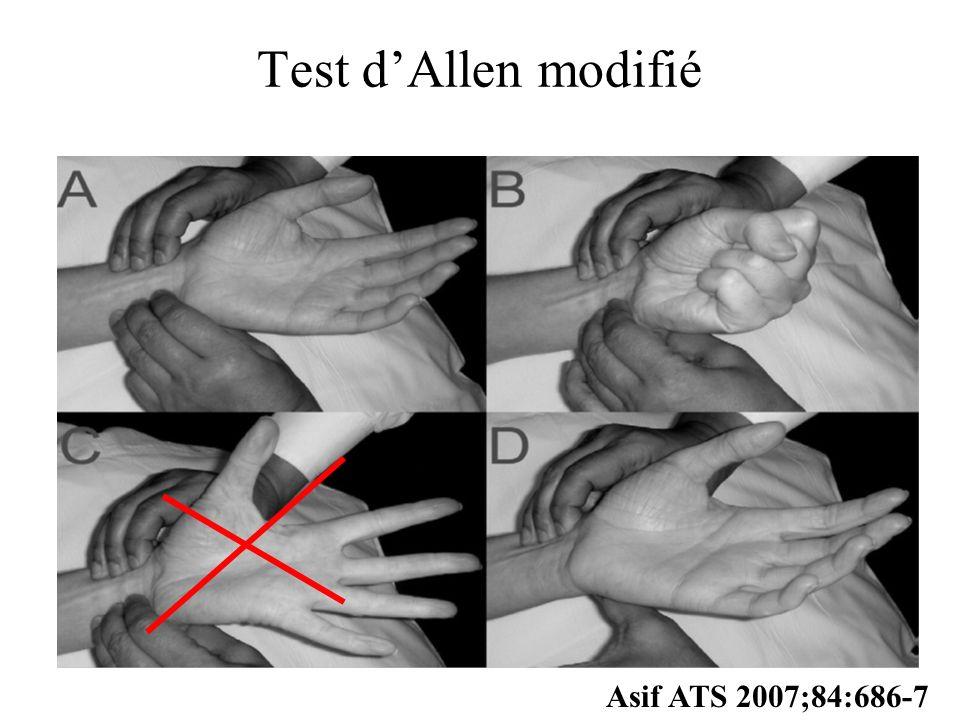 Test dAllen modifié Asif ATS 2007;84:686-7