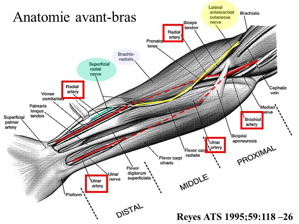 Conclusions de RSVP Perméabilité à 5 ans radiale 98% v/s saphène 86% Préférentiellement si la Cx pontée par la radiale est très serrée > 90% Perméabilité radiale = mammaire