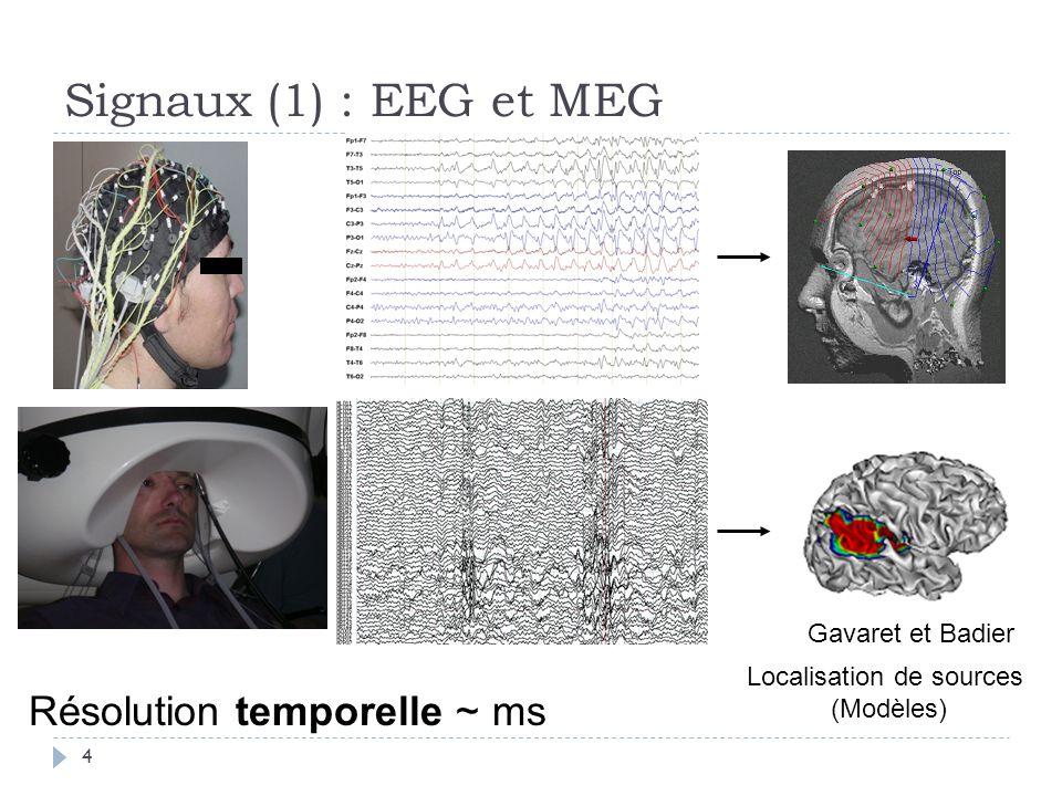 Signaux (1) : EEG et MEG Résolution temporelle ~ ms Localisation de sources (Modèles) Gavaret et Badier 4