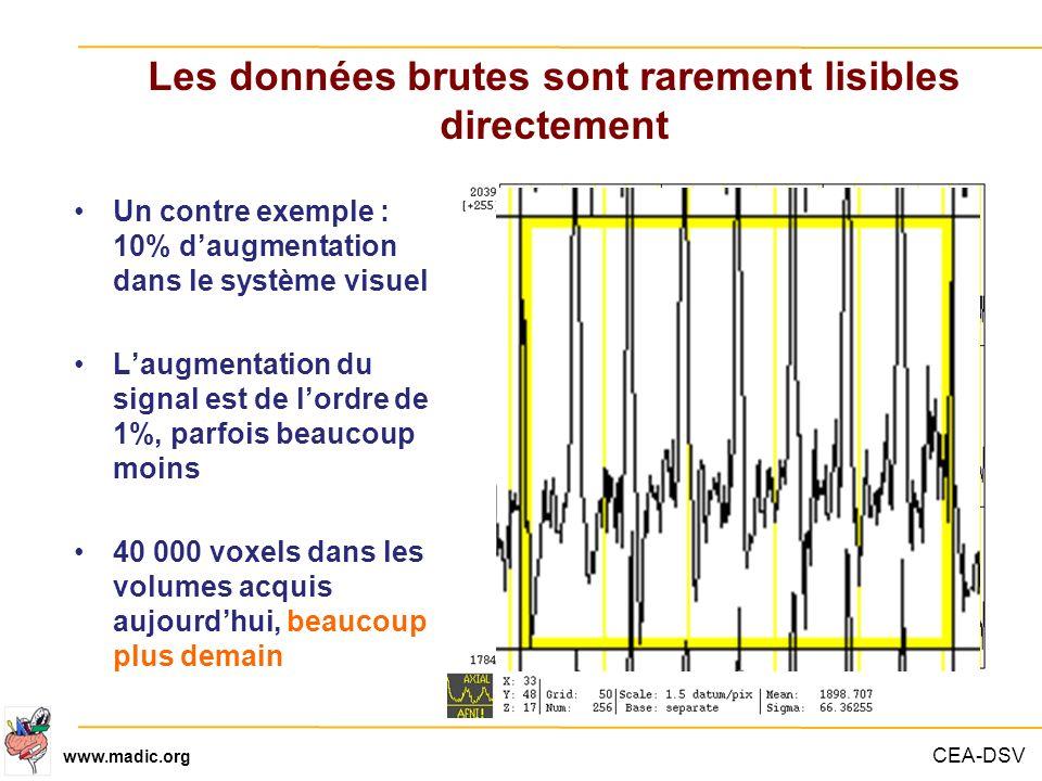 CEA-DSV www.madic.org Les données brutes sont rarement lisibles directement Un contre exemple : 10% daugmentation dans le système visuel Laugmentation