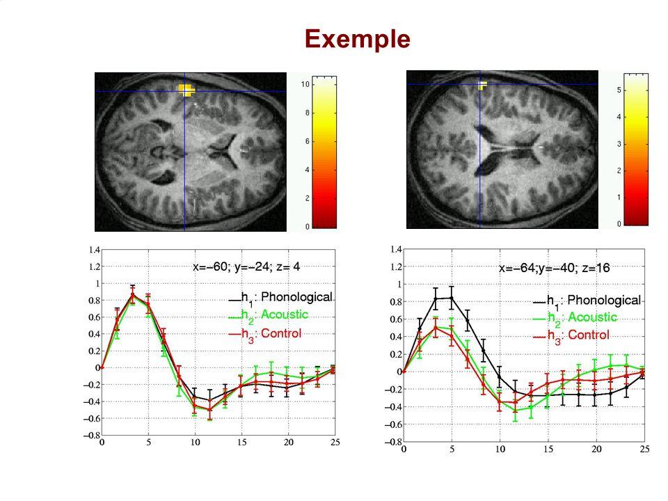 UNAF-SHFJ J.B. Poline 17 Exemple Ciuciu et al, 2003