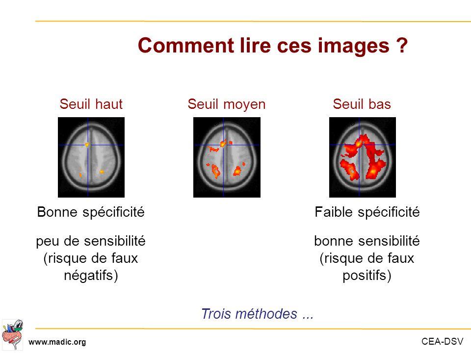 CEA-DSV www.madic.org Comment lire ces images ? t > 0.5 t > 3.5t > 5.5 Seuil hautSeuil moyenSeuil bas Bonne spécificité peu de sensibilité (risque de