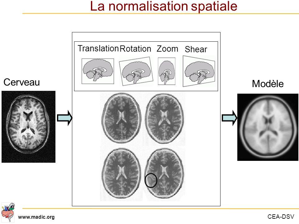 CEA-DSV www.madic.org Translation RotationZoom Shear Cerveau La normalisation spatiale Modèle