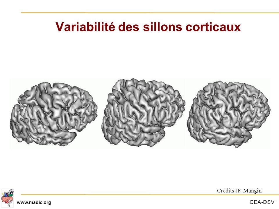 CEA-DSV www.madic.org Variabilité des sillons corticaux Crédits JF. Mangin