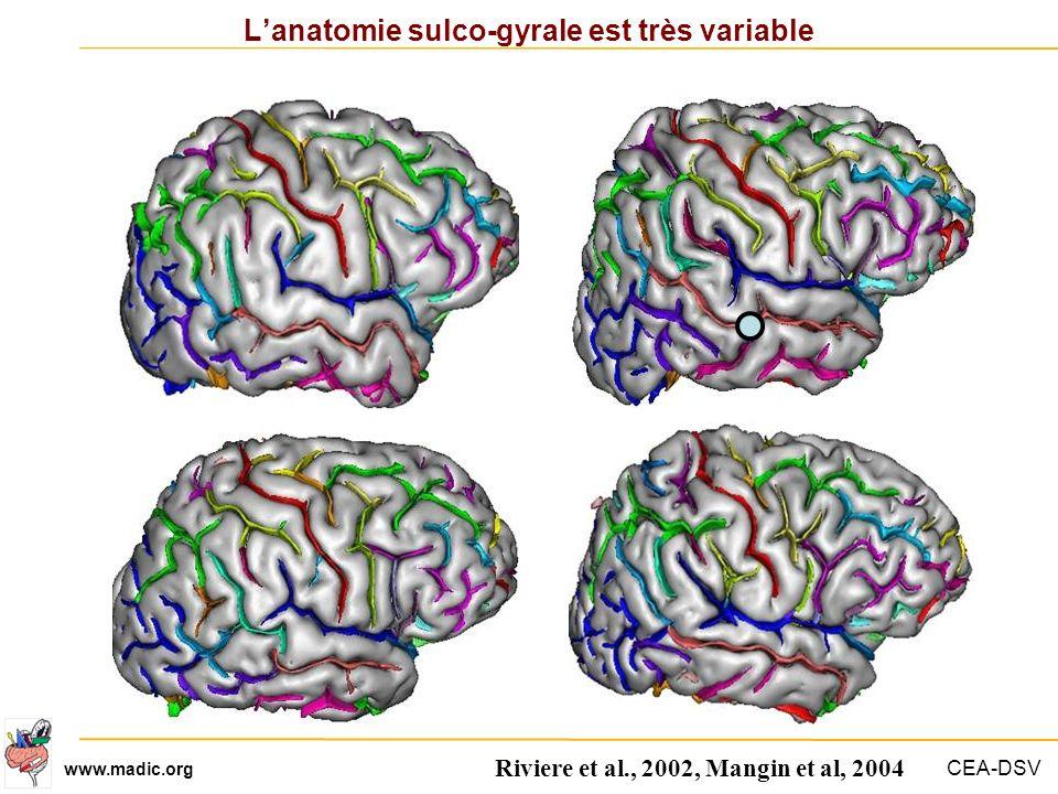 CEA-DSV www.madic.org Lanatomie sulco-gyrale est très variable Riviere et al., 2002, Mangin et al, 2004