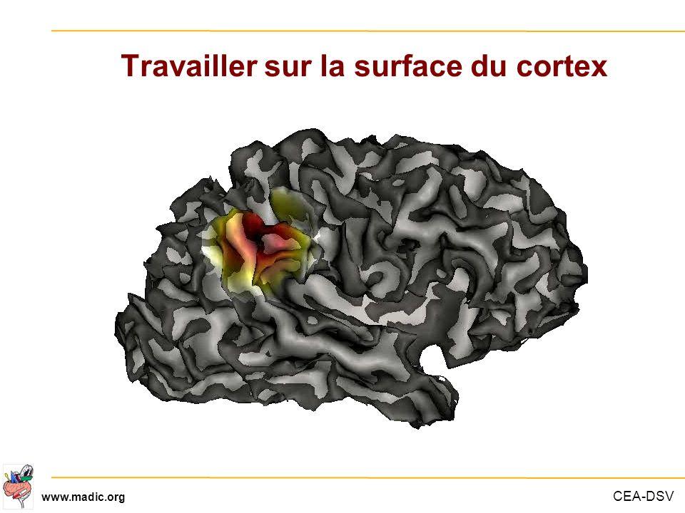 CEA-DSV www.madic.org Travailler sur la surface du cortex