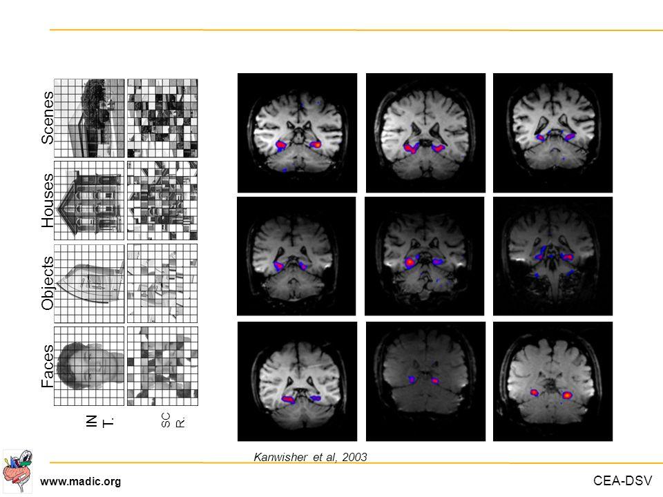 CEA-DSV www.madic.org FacesObjectsHousesScenes IN T. SC R. Kanwisher et al, 2003