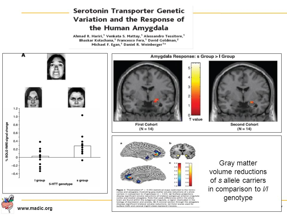 CEA-DSV www.madic.org Gray matter volume reductions of s allele carriers in comparison to l/l genotype