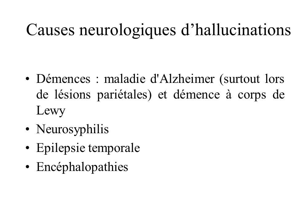 Causes neurologiques dhallucinations Démences : maladie d Alzheimer (surtout lors de lésions pariétales) et démence à corps de Lewy Neurosyphilis Epilepsie temporale Encéphalopathies