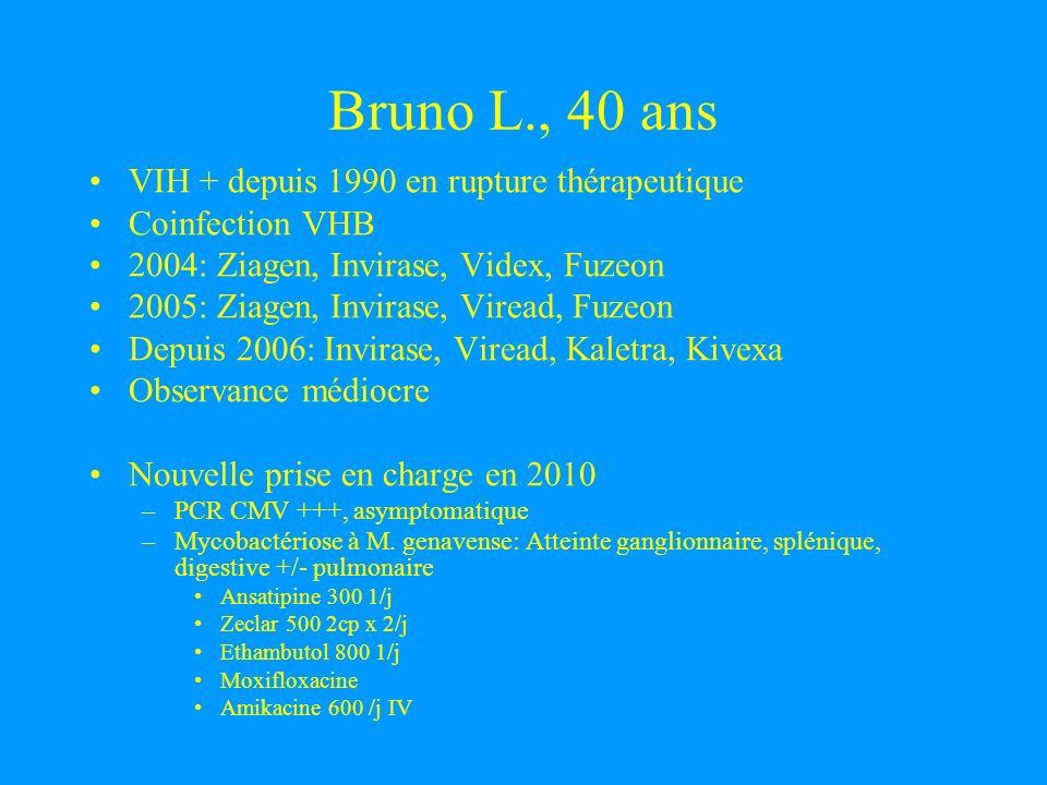 Bruno L., 40 ans VIH + depuis 1990 en rupture thérapeutique Coinfection VHB 2004: Ziagen, Invirase, Videx, Fuzeon 2005: Ziagen, Invirase, Viread, Fuze
