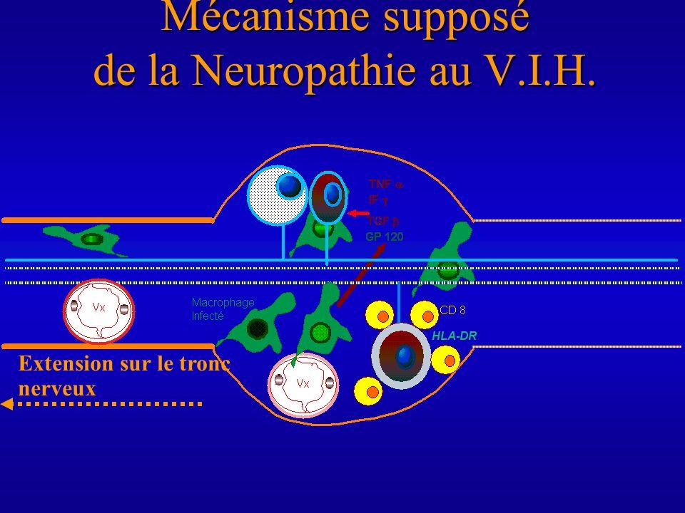 Mécanisme supposé de la Neuropathie au V.I.H. Extension sur le tronc nerveux