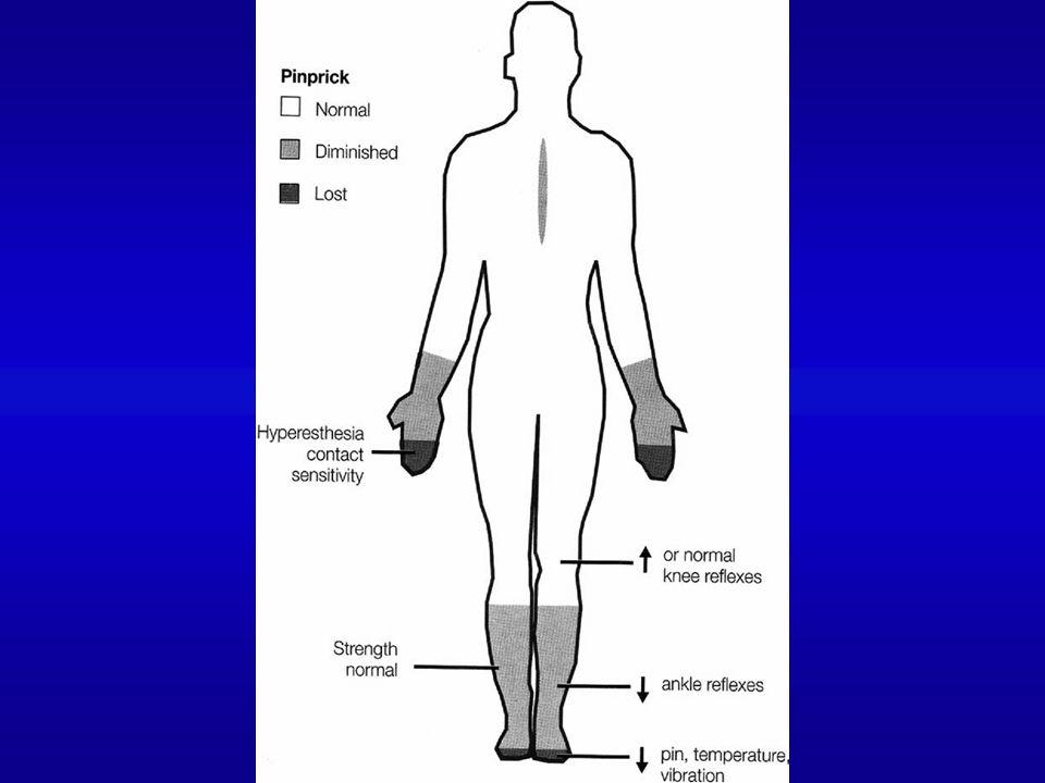 SÉMIOLOGIE CLINIQUE Si Neuropathie végétative Difficile à objectiver : Malaises, vertiges au lever, Syncopes vraies, Crises sudorales.