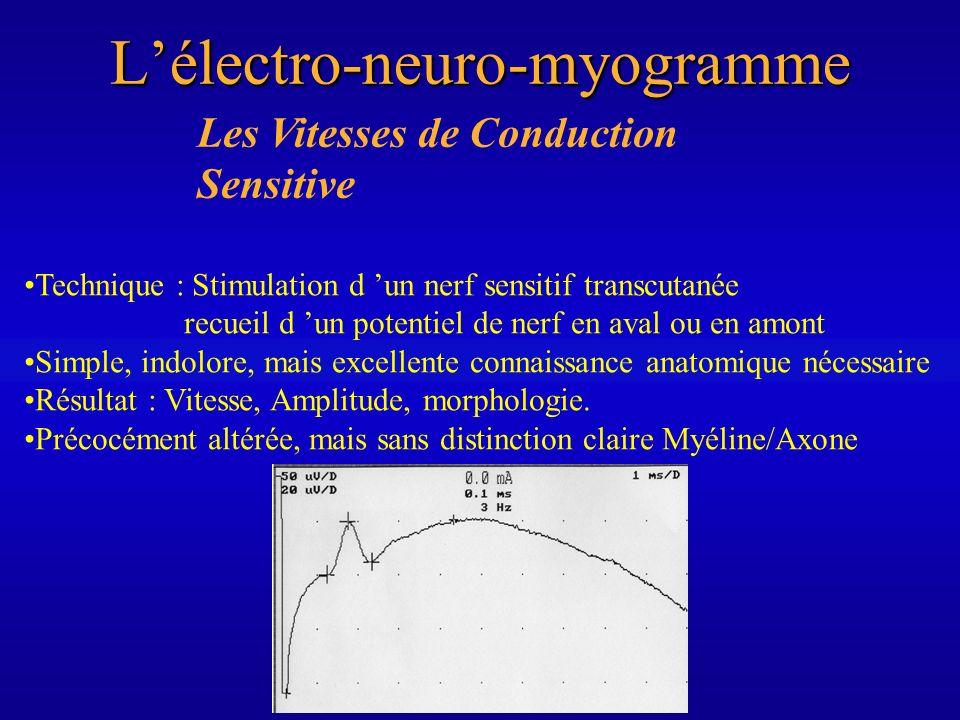 Les Vitesses de Conduction MotriceLélectro-neuro-myogramme Technique : Stimulation à deux niveaux d un tronc nerveux, recueil du Potentiel d Action Musculaire obtenu Plus désagréable, mais plus facilement réalisable et reproductible Résultat : vitesse ( valeurs normalisées), latence distale, amplitude de la réponse motrice, blocs de conduction, onde f (« vitesse proximale »), Très tardivement altérée si processus axonal et « sensitif ».