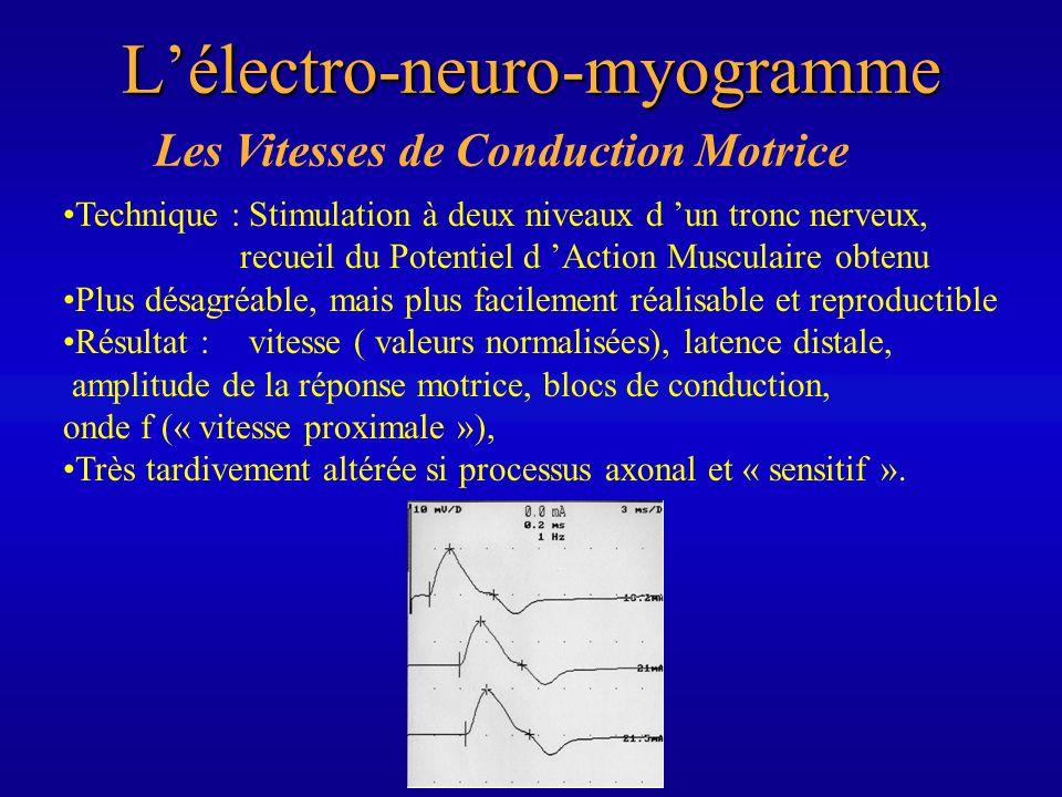 Les Vitesses de Conduction MotriceLélectro-neuro-myogramme Technique : Stimulation à deux niveaux d un tronc nerveux, recueil du Potentiel d Action Mu