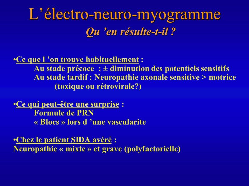 Lélectro-neuro-myogramme Qu en résulte-t-il ? Ce que l on trouve habituellement : Au stade précoce : ± diminution des potentiels sensitifs Au stade ta