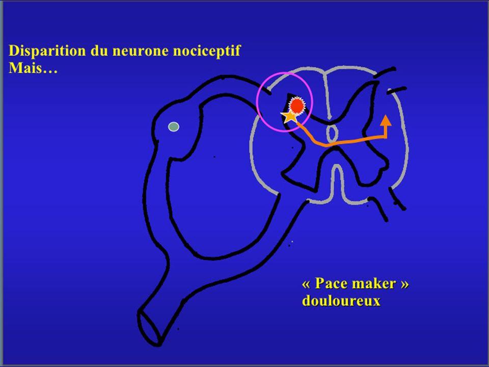 The Gate theory Les fibres myélinisées sensitives de gros calibres conduisent un influx rapide, non douloureux, qui module la perception de l influx nociceptif, lent, des petites fibres