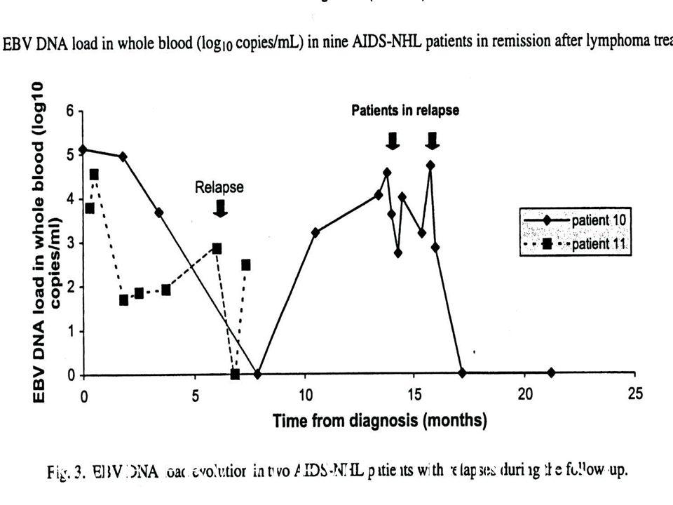 CHARGE VIRALE EBV ET EVOLUTION DES LNH HIV