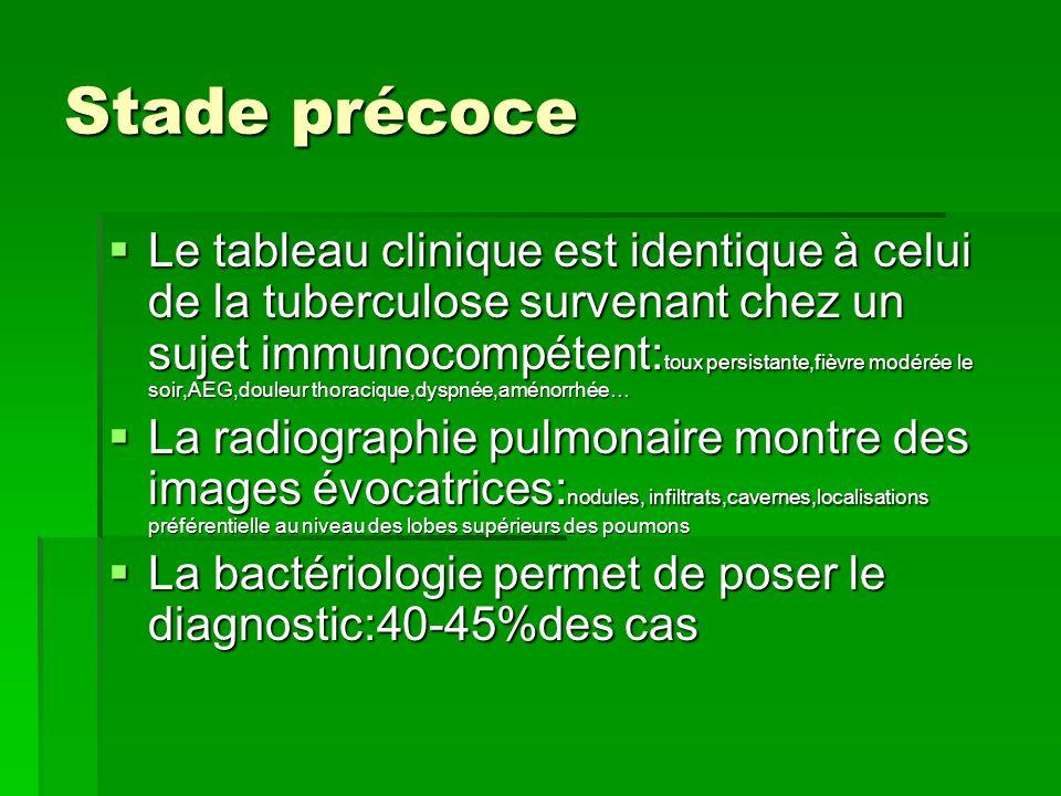 Stade précoce Le tableau clinique est identique à celui de la tuberculose survenant chez un sujet immunocompétent: toux persistante,fièvre modérée le