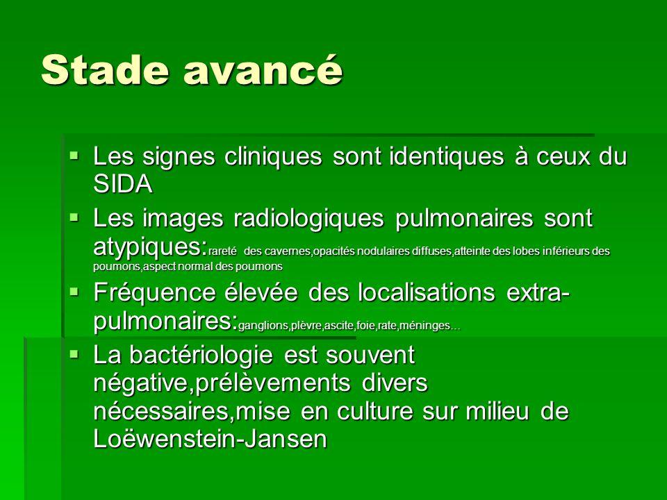 Stade avancé Les signes cliniques sont identiques à ceux du SIDA Les signes cliniques sont identiques à ceux du SIDA Les images radiologiques pulmonai