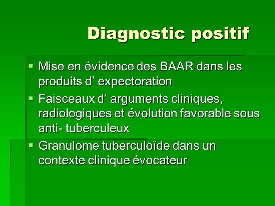 Diagnostic positif Mise en évidence des BAAR dans les produits d expectoration Mise en évidence des BAAR dans les produits d expectoration Faisceaux d