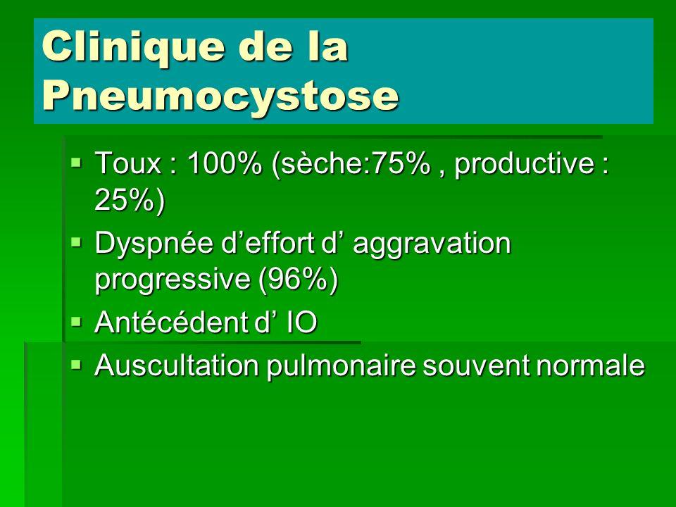 Clinique de la Pneumocystose Toux : 100% (sèche:75%, productive : 25%) Toux : 100% (sèche:75%, productive : 25%) Dyspnée deffort d aggravation progres