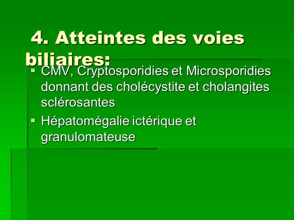 4. Atteintes des voies biliaires: 4. Atteintes des voies biliaires: CMV, Cryptosporidies et Microsporidies donnant des cholécystite et cholangites scl