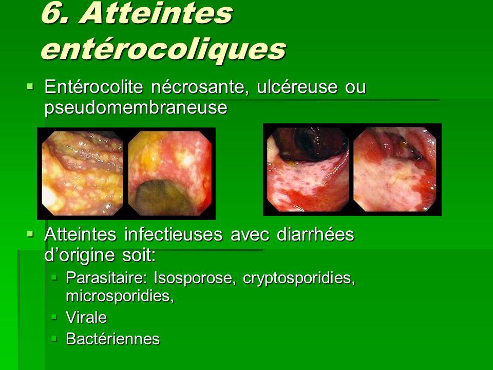 Atteintes infectieuses: Parasites Cryptosporidies: Cryptosporidies: Diarrhée cholériformes, Diarrhée cholériformes, Ziehl Nelson modifié, GIEMSA ou Biopsies, Ziehl Nelson modifié, GIEMSA ou Biopsies, Malabsorption VIT B12 et stéatorrhée Malabsorption VIT B12 et stéatorrhée