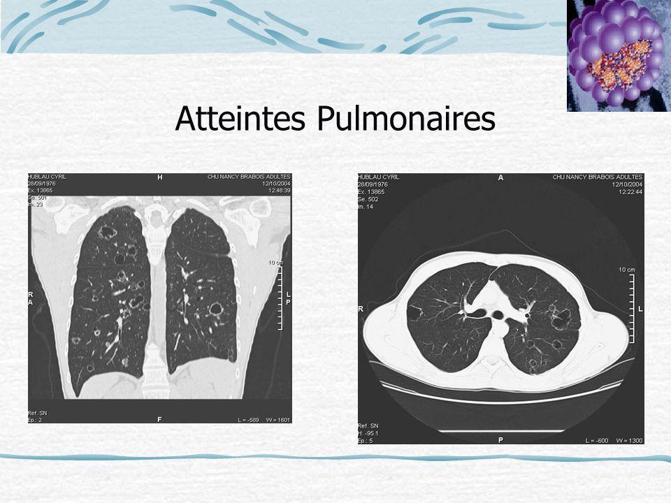 Atteintes Pulmonaires