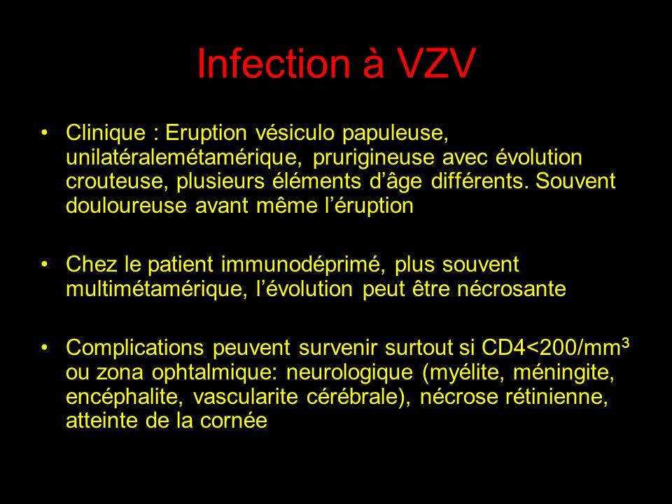 Infection à VZV Clinique : Eruption vésiculo papuleuse, unilatéralemétamérique, prurigineuse avec évolution crouteuse, plusieurs éléments dâge différents.
