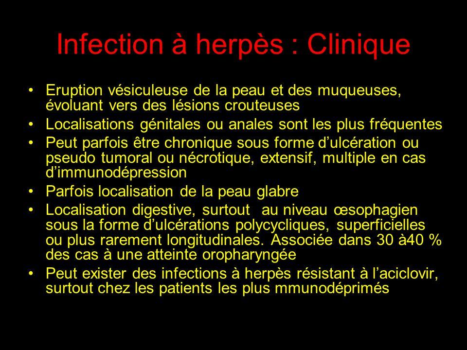 Infection à CMV Rétinite : Atteinte viscérale la plus fréquente (80% des cas) se manifeste par un flou visuel, un voile.