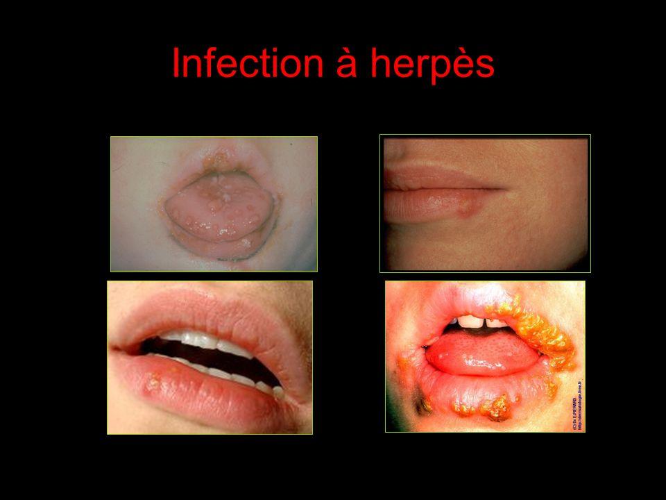 Infection à CMV
